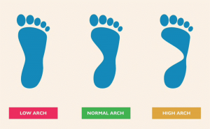 Diagnosis of the high arch using old shoe insoles